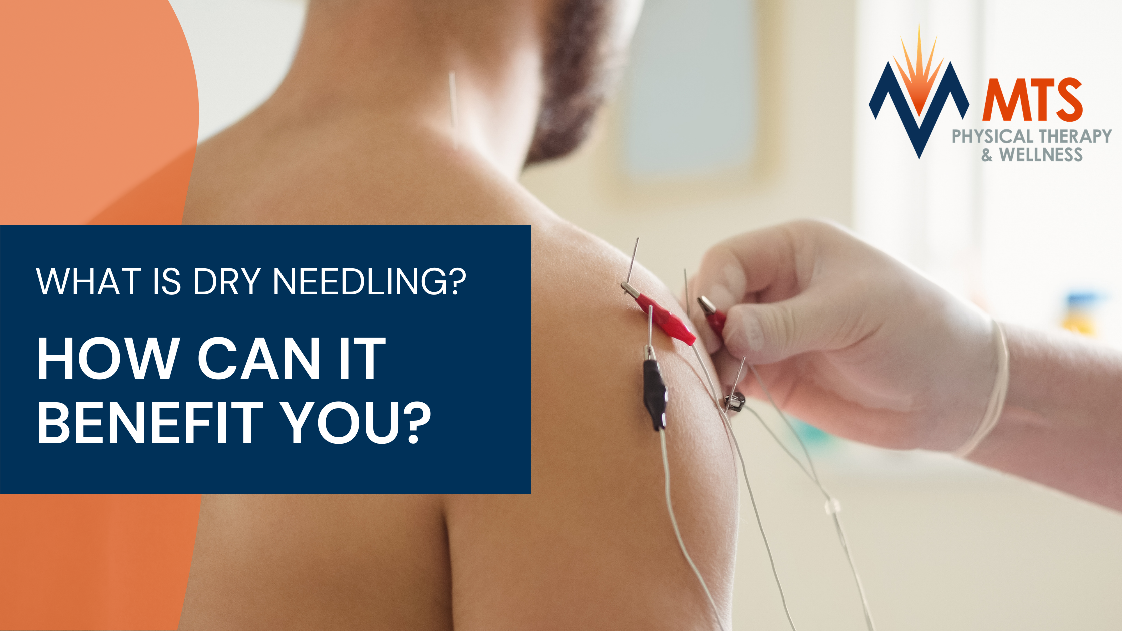 What is Dry Needling & How Can It Benefit You?