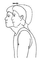chin retraction
